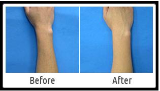Arms Hair Removal Laser Skin Clinic Delhi